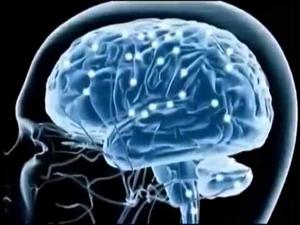 brain-1-300